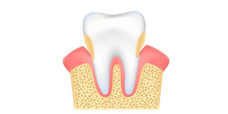 Periodontal Treatment Brooklyn